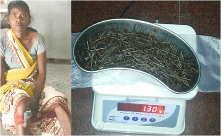 У жительницы Индии нашли в ногах более 70 стальных предметов