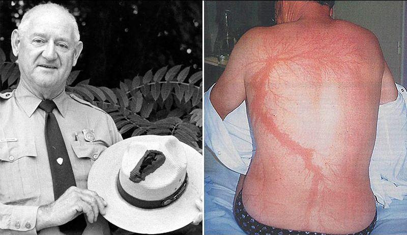 Мужчина пережил семь ударов молний и остался жив