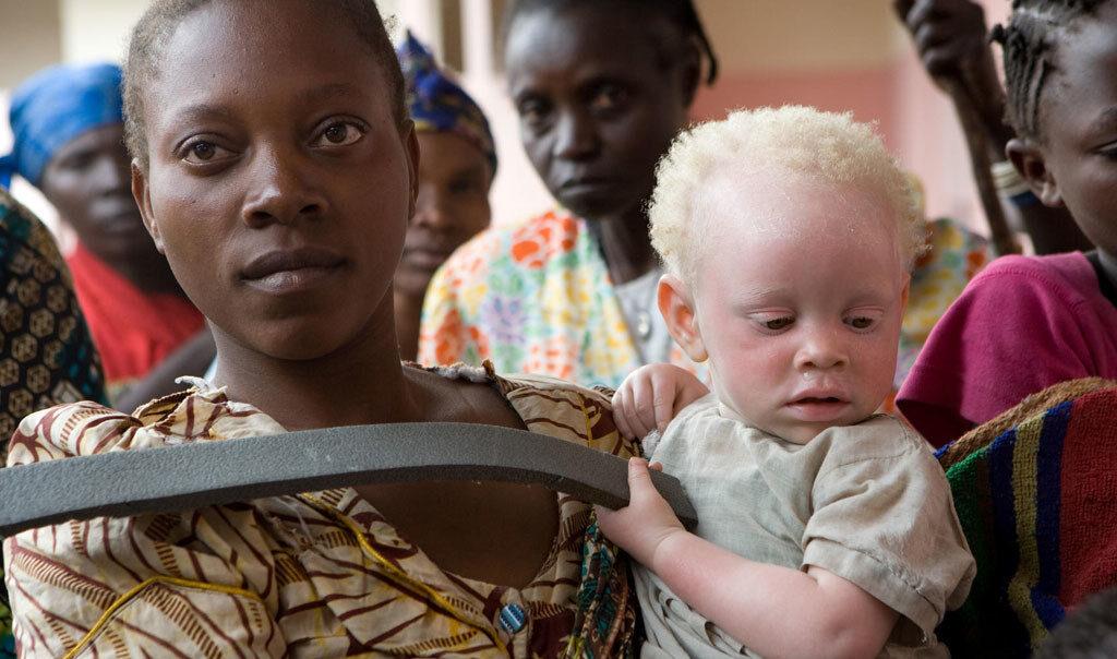 Пандемия коронавируса привела к росту насилия против альбиносов
