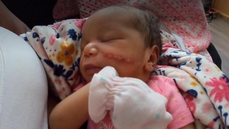 Хирург травмировал лицо ребенку во время кесарево сечения