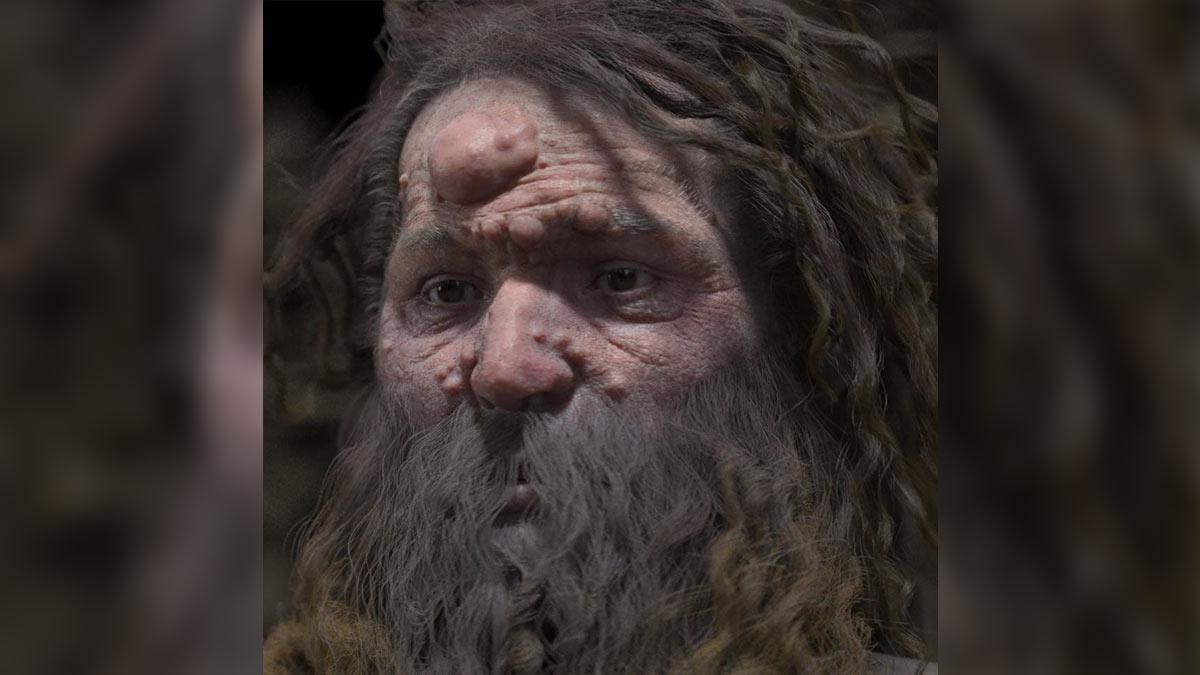 Мужчина, живший 28 тысяч лет назад, оказался покрыт опухолями