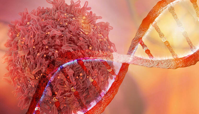 Врачи рассказали, что вызывает рак поджелудочной железы
