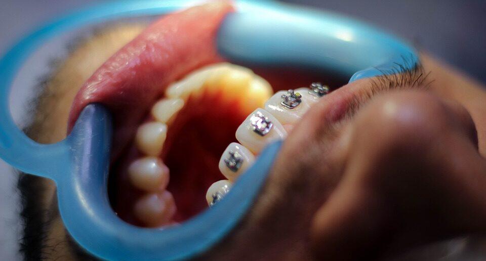 Женщина проникла в кабинет стоматолога и вырвала пациенту 13 зубов