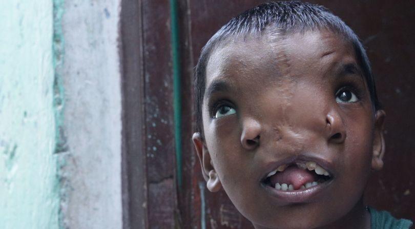 Медики прооперировали 6-летнюю девочку: ее считают божеством