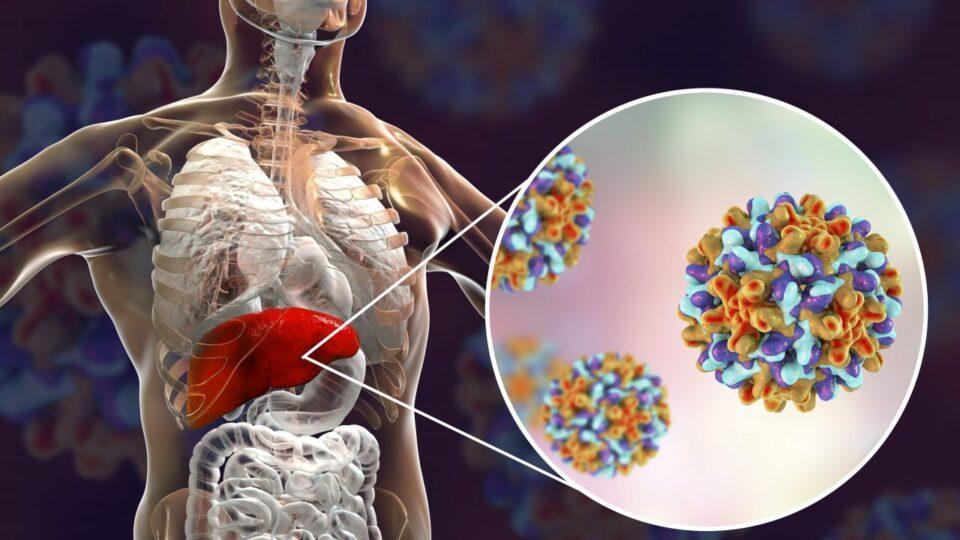 Вирус гепатита появился больше 10 тысяч назад