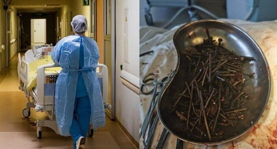 Медики достали из желудка мужчины килограмм гвоздей и шурупов