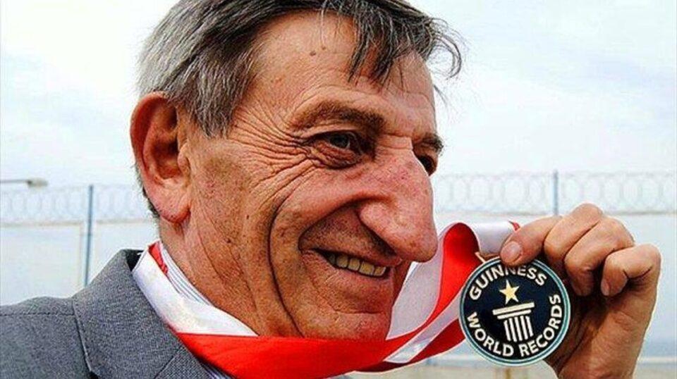 Человек с самым длинным носом в мире попал в Книгу рекордов Гиннесса