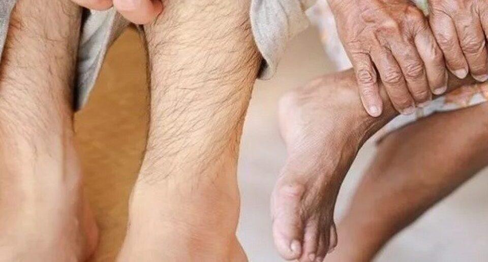 Названы симптомы сахарного диабета, которые проявляются на ногах