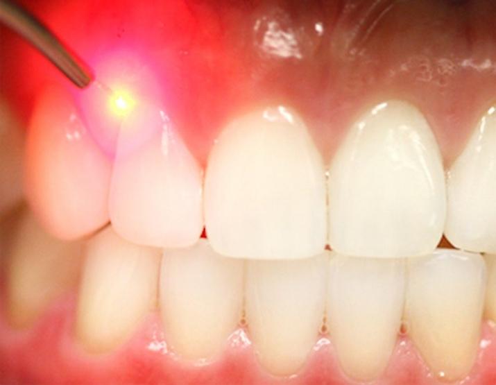 Зубы можно будет лечить безболезненно