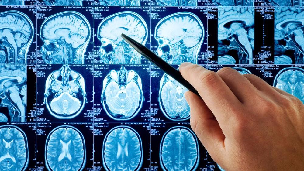 Обнаружен отдел мозга, который отвечает за связь с «высшим разумом»