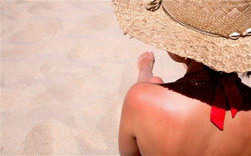 Пять солнечных ожогов обеспечат рак кожи
