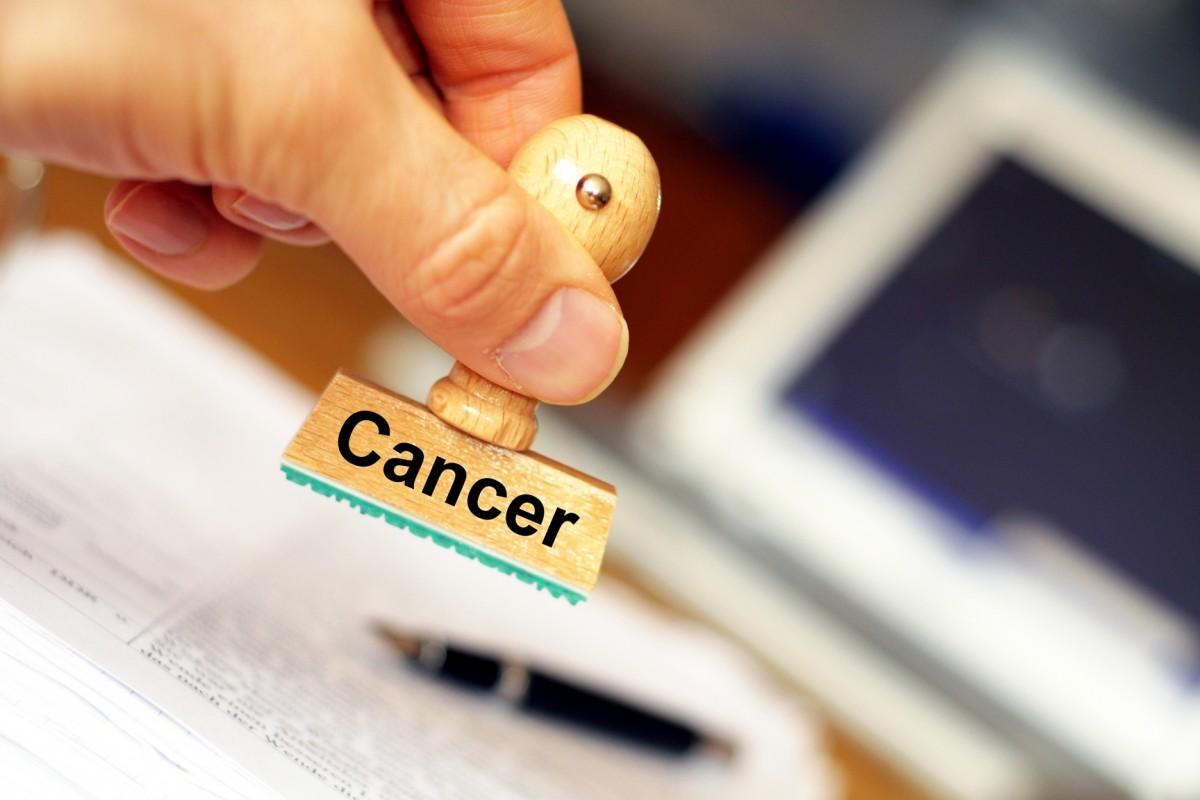 Создан метод раннего диагностирования рака кожи