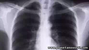 Ученые успешно вырастили искусственные лёгкие в лаборатории