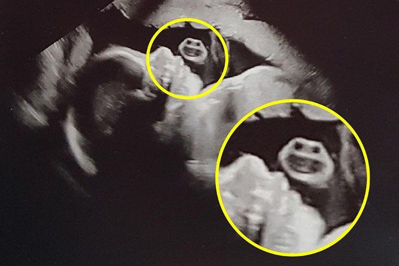 Девушка во время УЗИ увидела рядом с ребенком «Медового монстра»
