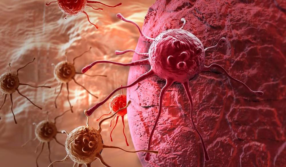Назван симптом рака легких, который проявляется при смехе