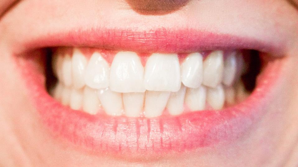 Имплантация зубов — самый эффективный и безопасный способ восстановления зубного ряда