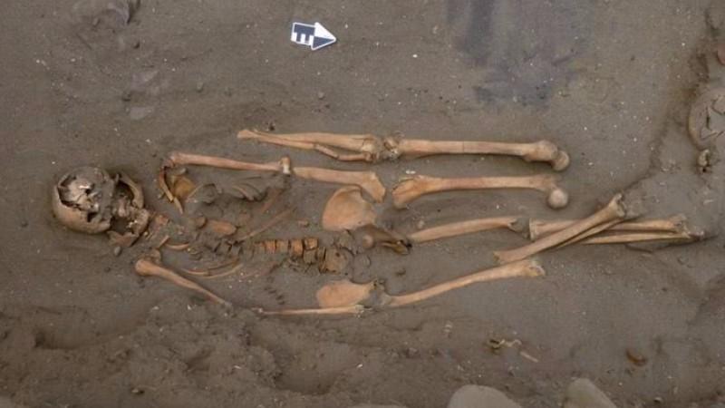 В Перу обнаружен человеческий скелет с дополнительными конечностями