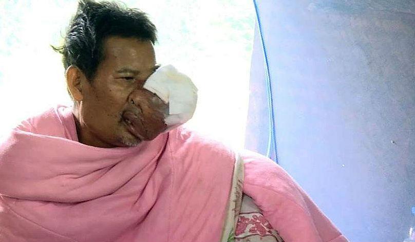 Опухоль на лице превратила тайца в чудовище и сломала ему жизнь