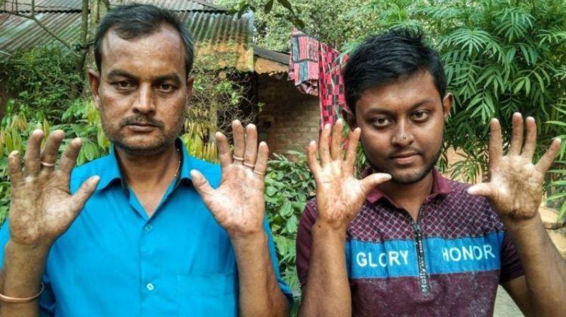 В Бангладеш живет семья без отпечатков пальцев: история необычных людей