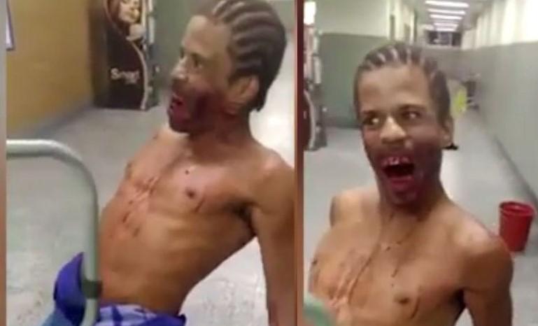 Бразилец-зомби разгуливал с огнестрельным ранением в голове по госпиталю