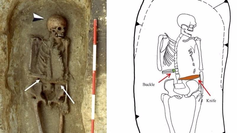 Средневековый итальянец заменил ампутированную руку на нож