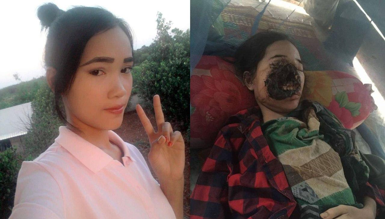 Визит к стоматологу изуродовал лицо 18-летней камбоджийки