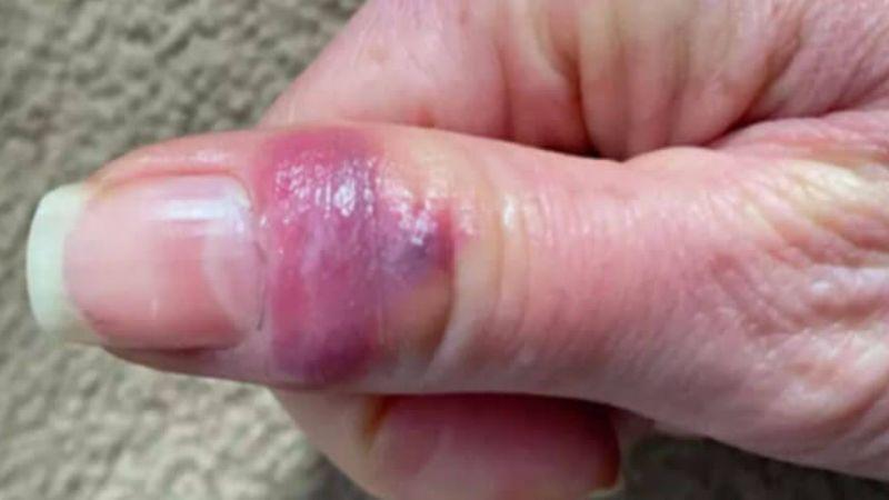 Врачи зафиксировали новый нетипичный симптом коронавириса