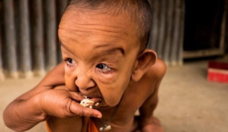 В Бангладеш живет ребенок, похожий на Бенджамина Баттона