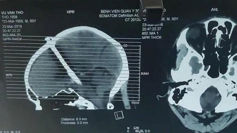Житель Вьетнама два дня ходил с 8-сантиметровым гвоздем в голове