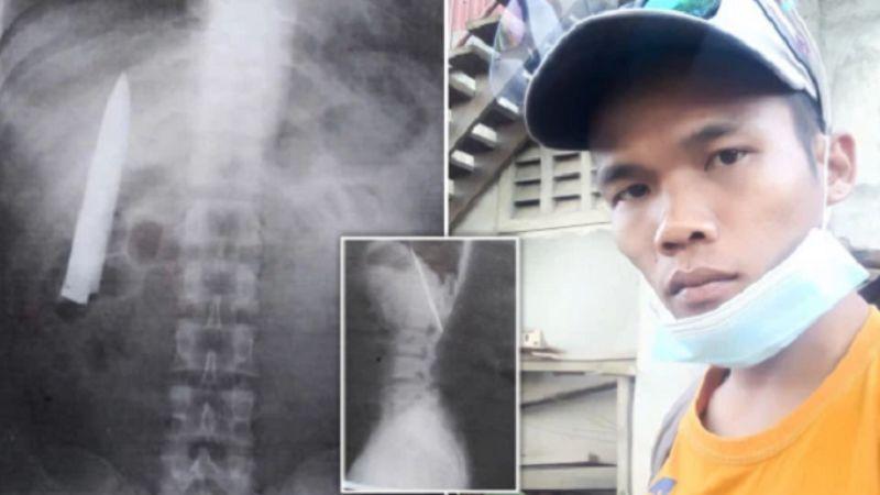 Мужчина случайно обнаружил нож, больше года сидевший в его груди