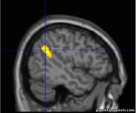 Почему Мозг Запоминать Сны?