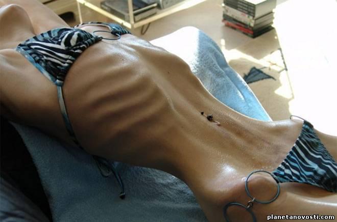 Ученые нашли лекарство от анорексии