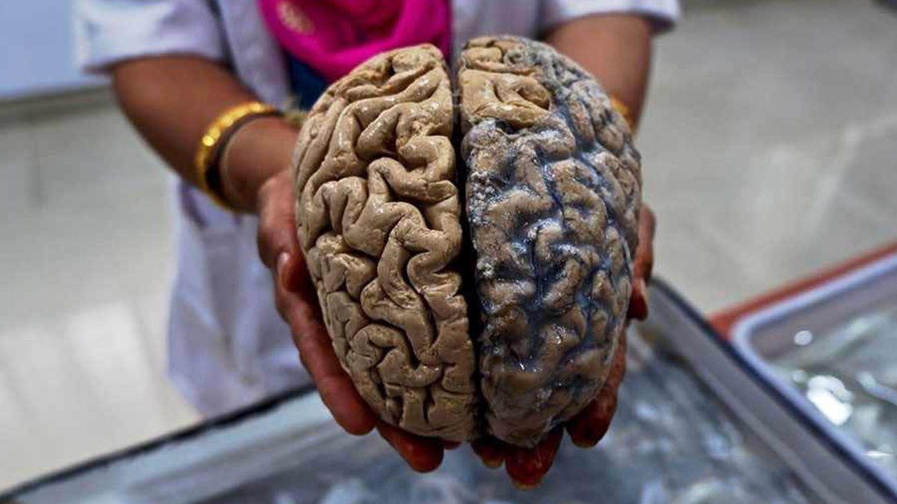 В мозге человека нашли «клетки-зомби», увеличивающие активность после смерти