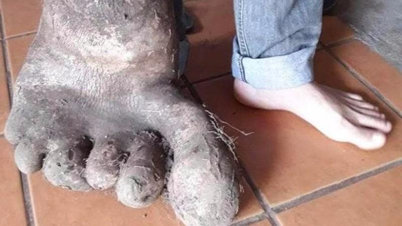 В Бразилии нашли «ногу великана»