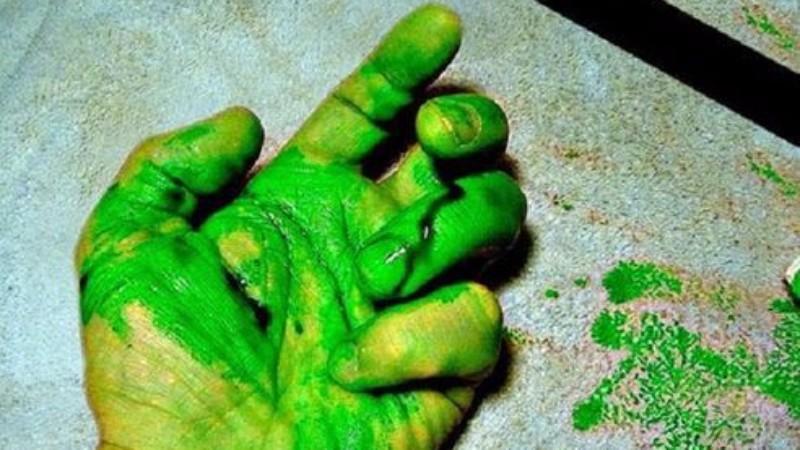 Врачи потеряли дар речи, когда из пациента потекла зеленая кровь