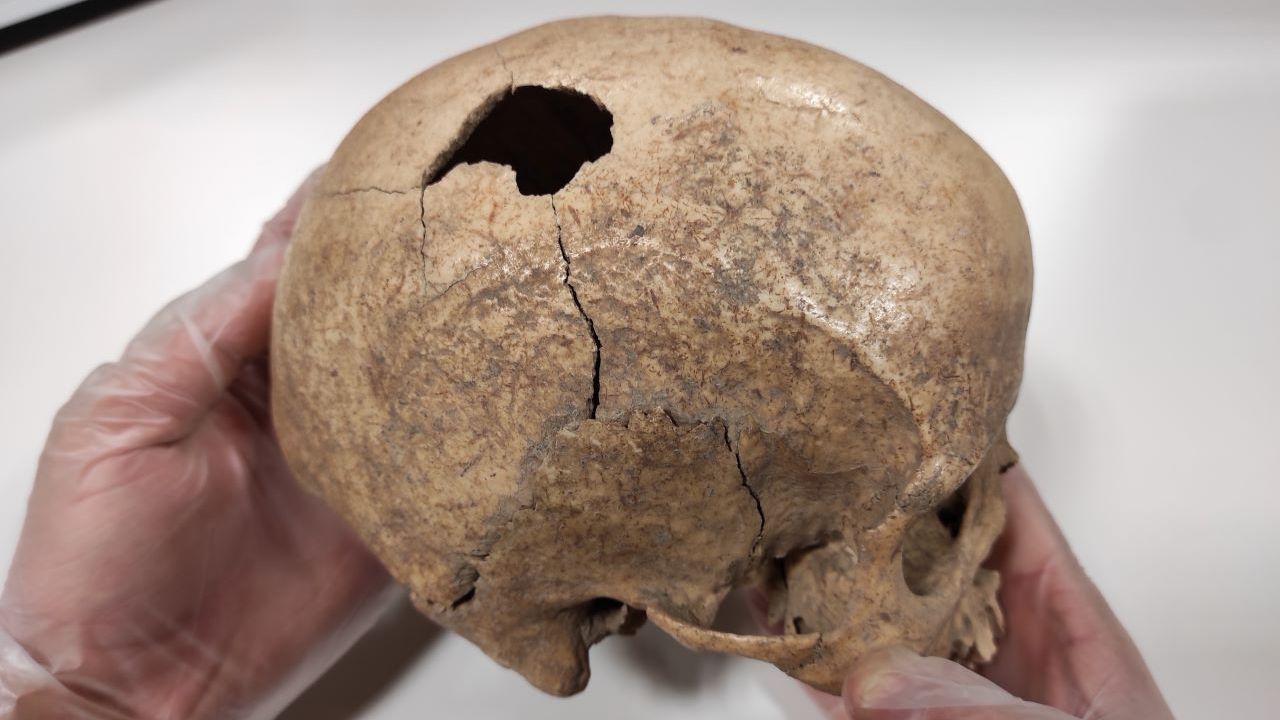 Археологи обнаружили череп мужчины, который жил пять тысяч лет назад