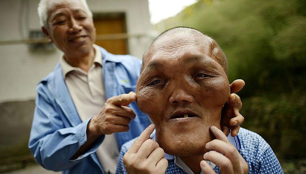 В Китае живет человек с головой инопланетянина