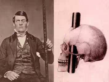 Финеас Гейдж, человек потерявший часть мозга