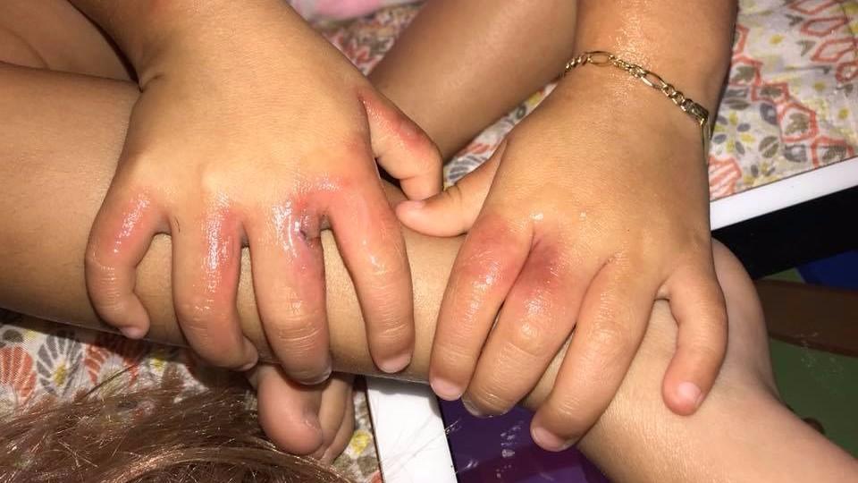 Трехлетняя девочка после купания на пляже Флориды покрылась язвами и пузырями
