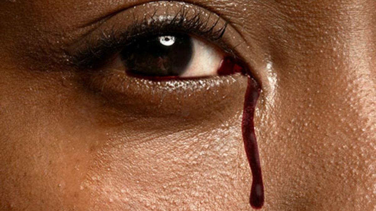 Медики в тупике: у девушки во время менструации идет кровь из глаз