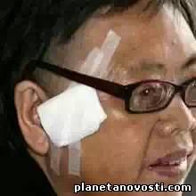 Китаянка прожила 48 лет с пулей в голове, не зная об этом