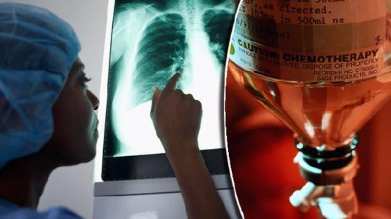 Опрос: 75 процентов врачей не делали бы себе химиотерапию