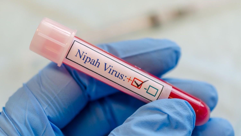 Эксперты предупреждают, что фармкомпании не готовы к пандемии вируса Nipah