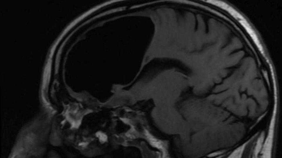 У мужчины в мозге обнаружена полость диаметром 9 сантиметров