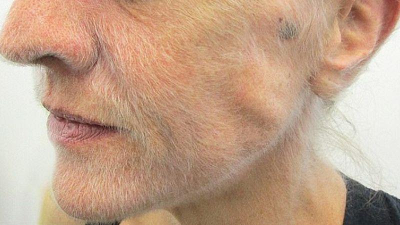 Выросшая у австралийки борода оказалась симптомом смертельной болезни