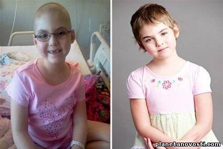 Американские врачи излечили девочку от рака, заразив её ВИЧ